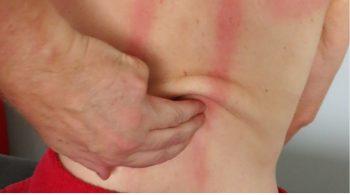 Bindegewebsmassage diagnostischer strich rücken reflexzonen